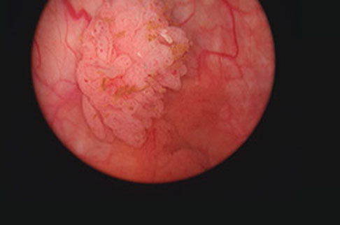 Superficial bladder tumour