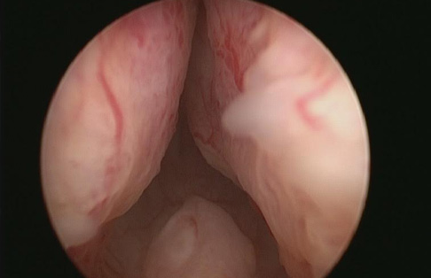 Telescopic view of enlarged prostate