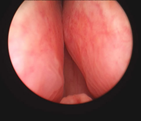 Telescopic view of large prostate causing obstruction
